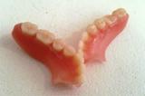 ReparaciÓn de prÓtesis dentales - foto